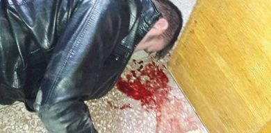 Мер побився до крові з громадянами, що прийшли на прийом