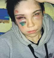 Стали известны подробности жестокого избиения подростка