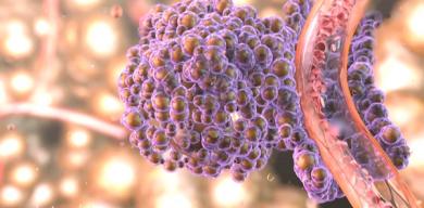 Які фактори можуть провокувати рак та як уникнути захворювання: поради сумського онколога (відео)