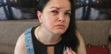 У Сумах біля під'їзду будинку жорстоко побили керівницю благодійного фонду